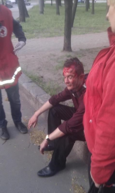 На марш ультрас за единство Украины напали пророссийские активисты: есть тяжело раненные (ВИДЕО, ФОТО)